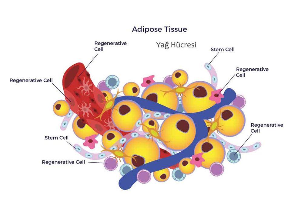 Lipo İnflamasyon Nedir?